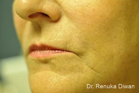 Laser Skin Resurfacing - Face: Patient 2 - After Image 1