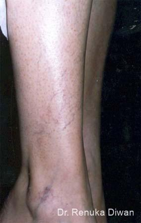 Veins On Legs: Patient 1 - Before Image