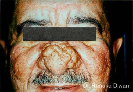 Lasers For Rhinophyma: Patient 1 - Before Image