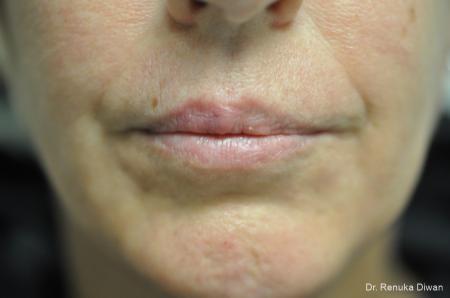 Lip Augmentation: Patient 16 - Before Image 1