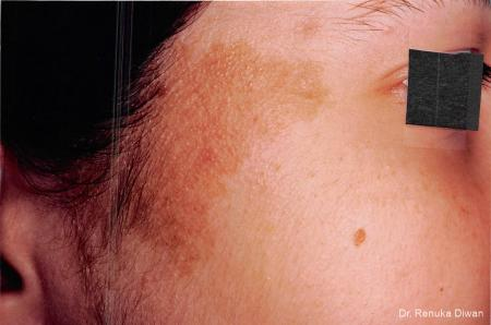 Lasers For Brown Spots: Patient 1 - Before Image 1