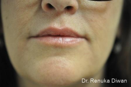 Lip Augmentation: Patient 12 - After Image 1