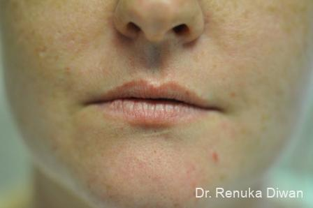 Lip Augmentation: Patient 3 - Before Image 1