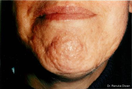 Acne Scars: Patient 2 - Before Image