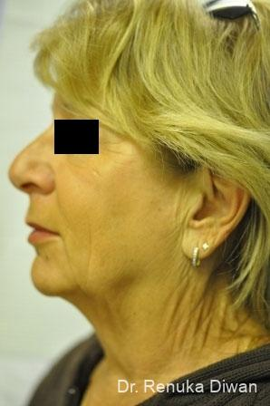 Facelift & Neck Lift: Patient 1 - Before and After Image 2