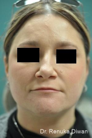 BOTOX® Cosmetic: Patient 27 - Before Image 1
