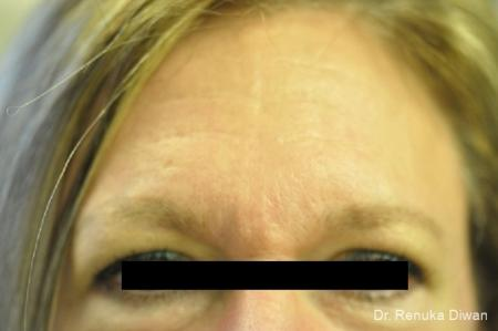 Frown Lines: Patient 5 - After Image