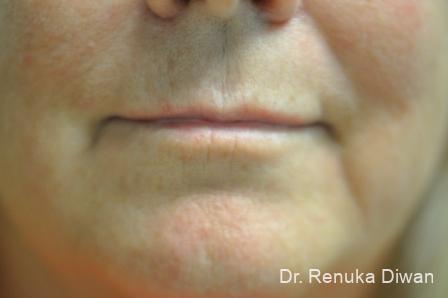 Lip Augmentation: Patient 10 - Before Image