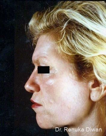 Chemical Peel: Patient 2 - After Image