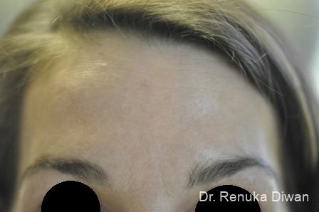 BOTOX® Cosmetic: Patient 15 - After Image
