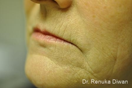 Laser Skin Resurfacing: Patient 1 - Before Image