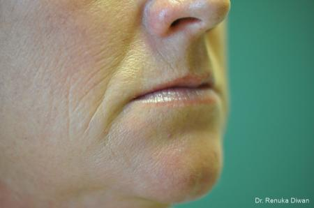 Microneedling: Patient 4 - Before Image