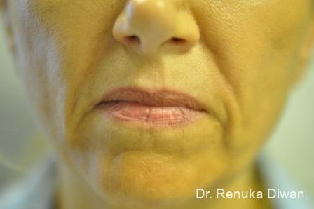 Marionette Lines: Patient 2 - Before Image 1