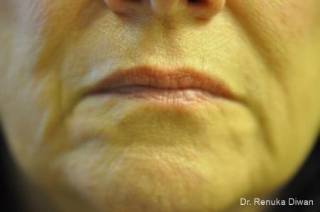 Marionette Lines: Patient 10 - Before Image 1