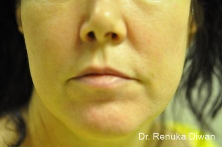 Laser For Veins And Redness: Patient 10 - After Image