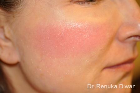 Laser For Veins And Redness: Patient 7 - Before and After Image 2