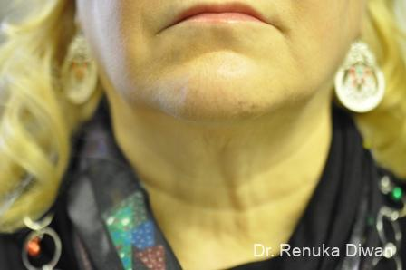 Kybella: Patient 3 - After Image 1