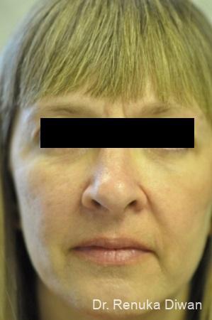 Dark Circles: Patient 19 - After Image 1