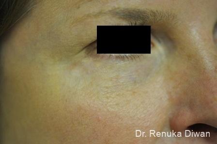 Laser For Veins And Redness: Patient 16 - After Image 1