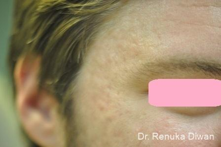 Acne Scars: Patient 4 - After Image