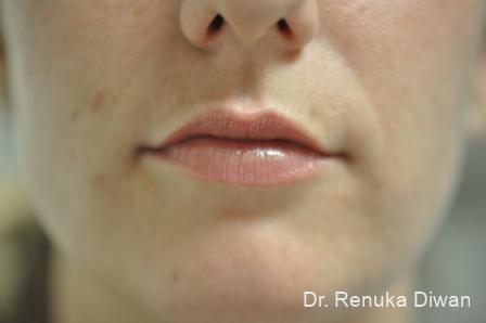 Lip Augmentation: Patient 5 - Before Image