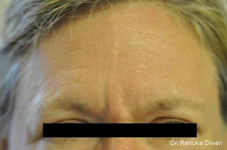 Frown Lines: Patient 5 - Before Image