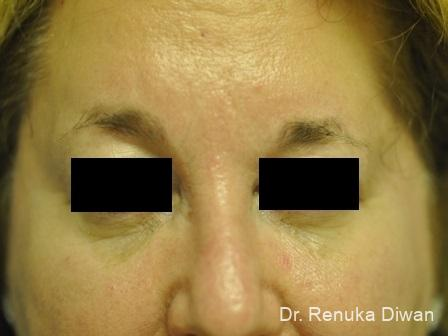 Frown Lines: Patient 7 - After Image