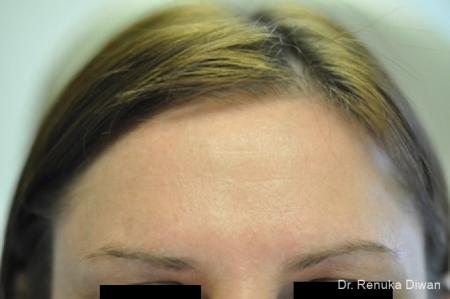 BOTOX® Cosmetic: Patient 17 - After Image 1