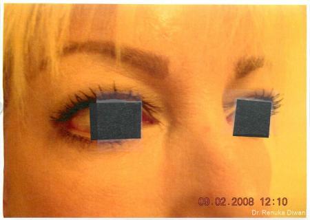Dark Circles: Patient 11 - After Image 1