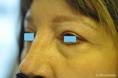 Blepharoplasty: Patient 3 - After Image 4