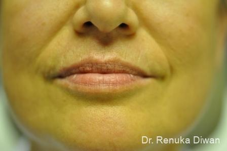 BOTOX® Cosmetic: Patient 24 - After Image 1