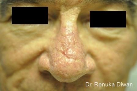 Laser Skin Resurfacing For Men: Patient 2 - Before Image 1