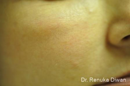 Laser For Veins And Redness: Patient 7 - After Image