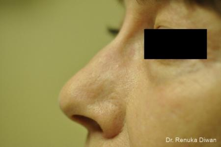 Laser: Patient 1 - After Image 1