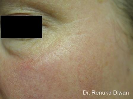 Crows Feet Creases For Men: Patient 1 - After Image 1
