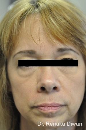 Dark Circles: Patient 20 - Before Image 1