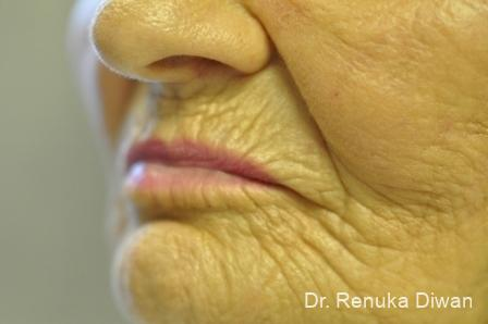 Laser Skin Resurfacing - Face: Patient 11 - Before and After Image 2