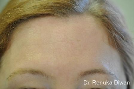 Forehead Creases: Patient 6 - After Image