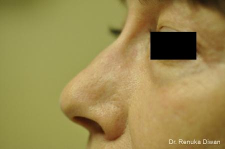 Scar Revision: Patient 4 - After Image