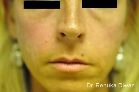 Loss Of Fullness: Patient 7 - Before Image