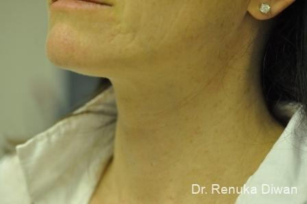 Neck Creases: Patient 3 - After Image