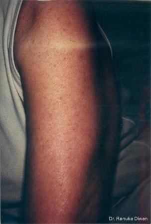 Lasers For Brown Spots: Patient 4 - After Image 1