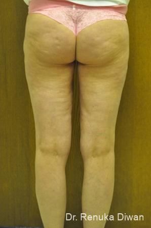 Liposuction: Patient 16 - After Image 2