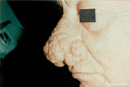 Lasers For Rhinophyma: Patient 2 - Before Image