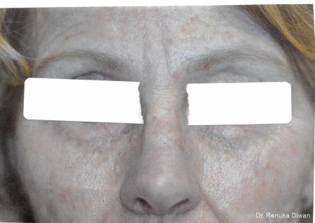 Frown Lines: Patient 10 - Before Image