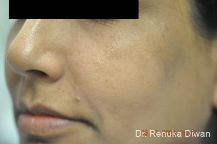 Microneedling: Patient 2 - After Image