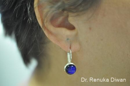 Earlobe Surgery: Patient 5 - Before and After Image 2