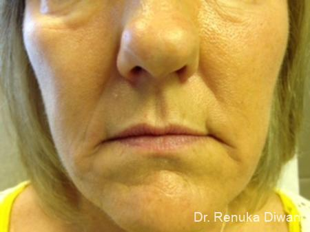 Lips And Mouth: Patient 6 - Before Image 1