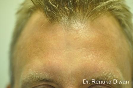 Frown Lines For Men: Patient 2 - After Image 1
