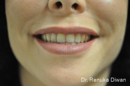 Smile Lines: Patient 10 - After Image 1